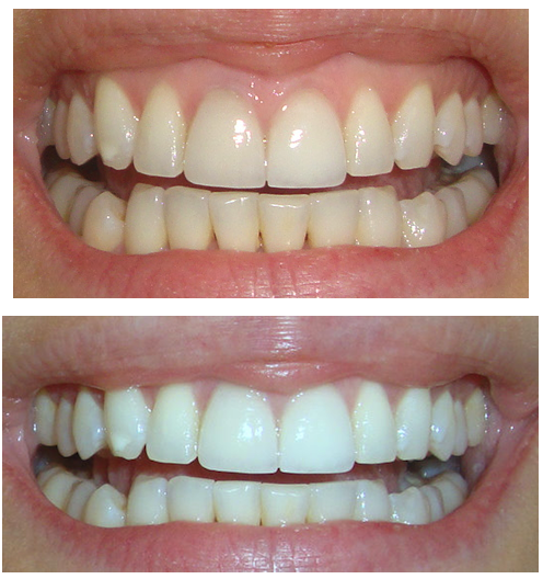 Whiten teeth crest white strips before after
