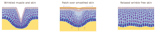 reduce wrinkles with frownies patches