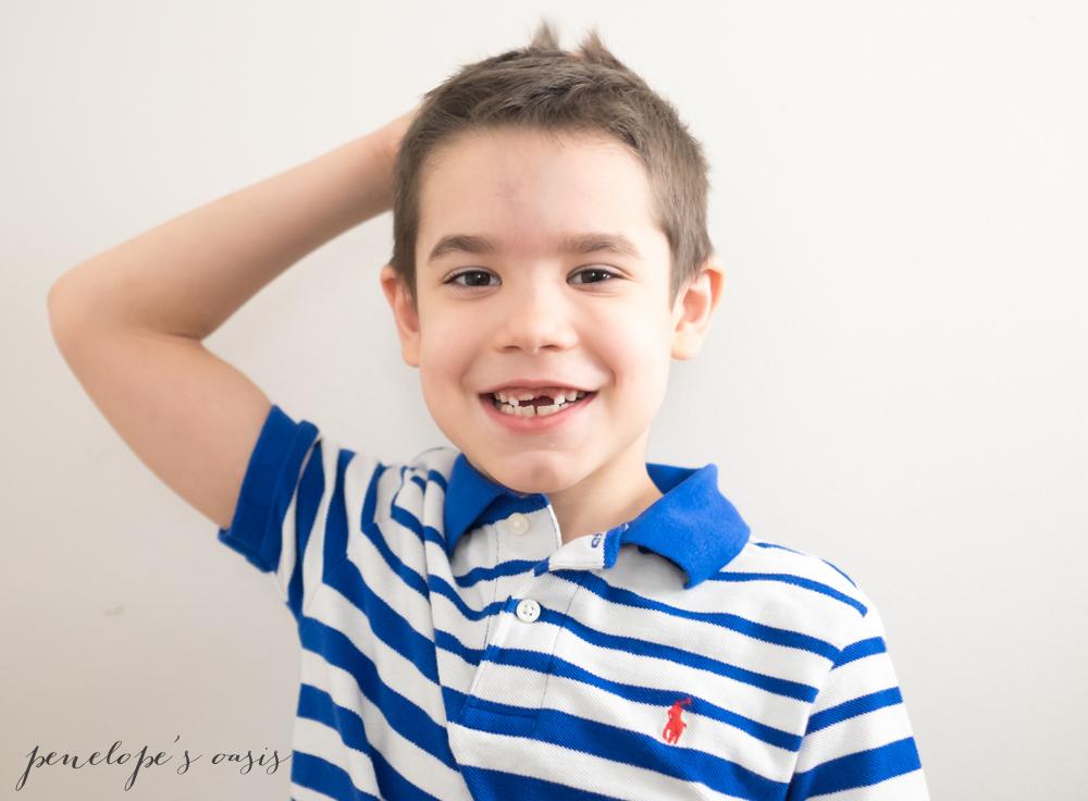 boy lost front teeth